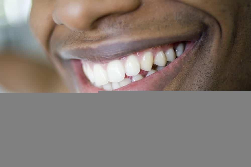 Kako izbeliti zube